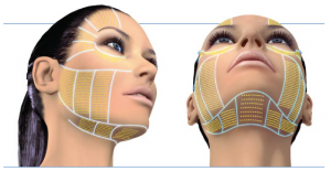 Ultherapy prix full face
