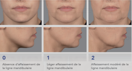 Lifting-ultrason-ovale-visage