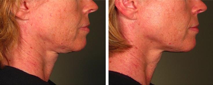 lifting ovale visage par ultherapy