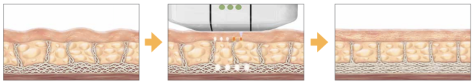 Ultherapy-ligne
